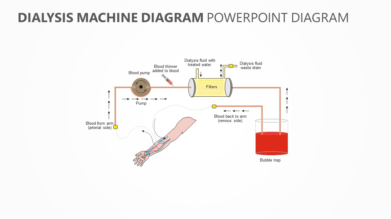 Dialysis Machine PowerPoint Diagram
